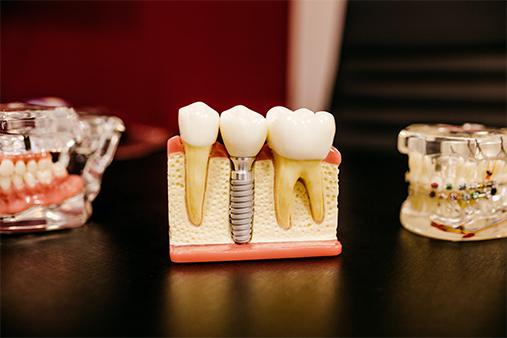 Εμφύτευμα ή γέφυρα για την αποκατάσταση των δοντιών